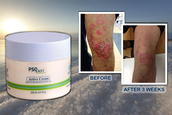 PsoEasy Active Treatment Cream